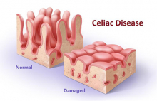 visual of healthy vs. damaged villi due to celiac disease