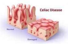 visual of healthy vs. damaged villi due to celiac disease